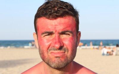 The Best Way to Treat a Sunburn