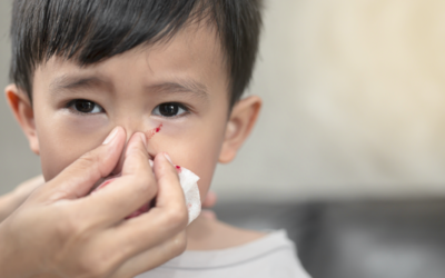 Why Is Your Child Getting Nosebleeds and How Can You Stop It?